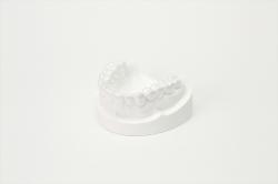 歯を白くするカバー装置(ホワイトニング)